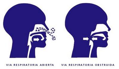 Apnea del sueño, obstrucción, vías respiratorias