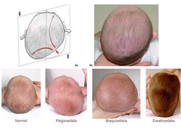 plagiocefalia-cabeza