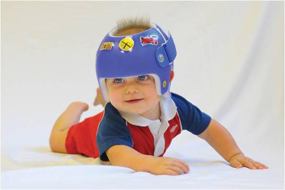 plagiocefalia-casco