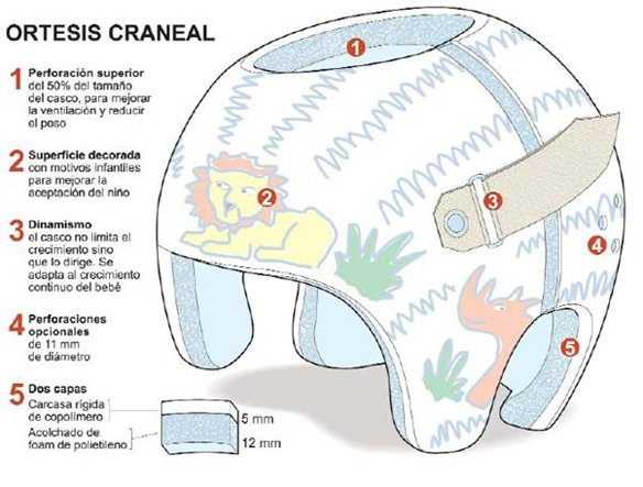 plagiocefalia-casco.partes