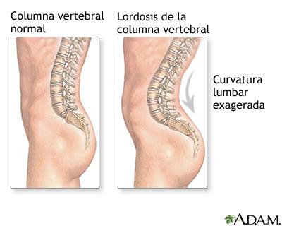 Lordosis de espalda