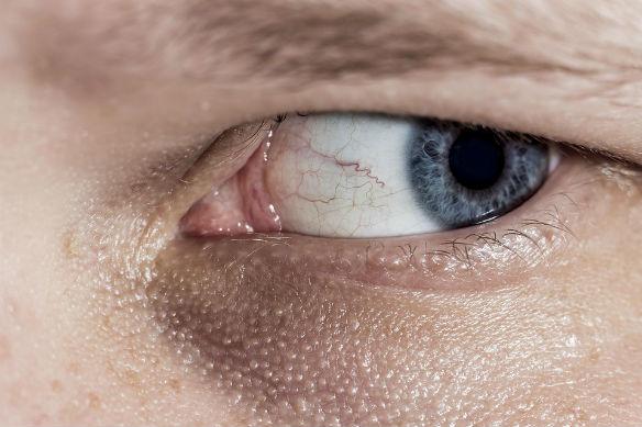 el blanco de los ojos