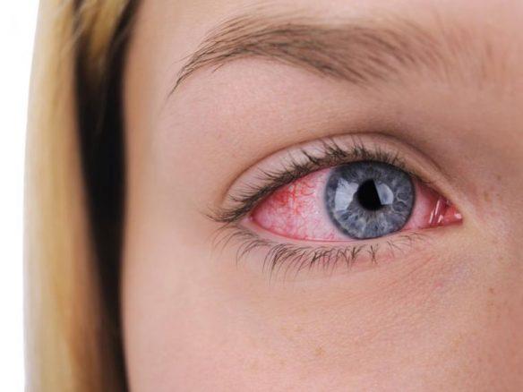 problema ojos rojos