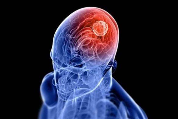Parkinson. Fuente: www.pinterest.com
