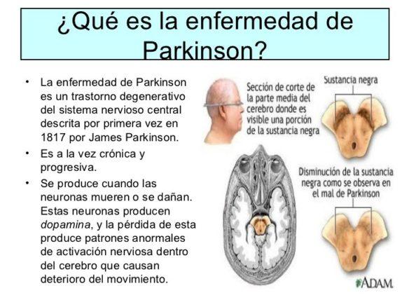 Parkinson. Fuente: www.bebee.com